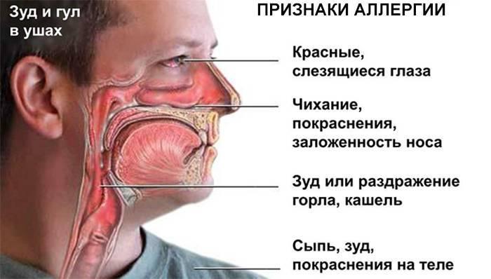 Слезятся глаза при простуде: причины, сопутствующие симптомы, лечение, осложнения