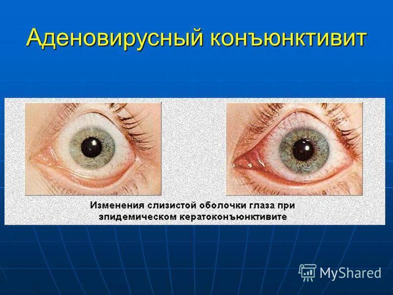 Вирусный конъюнктивит у детей: лечение, симптомы (фото), причины, диагностика, протекание с температурой