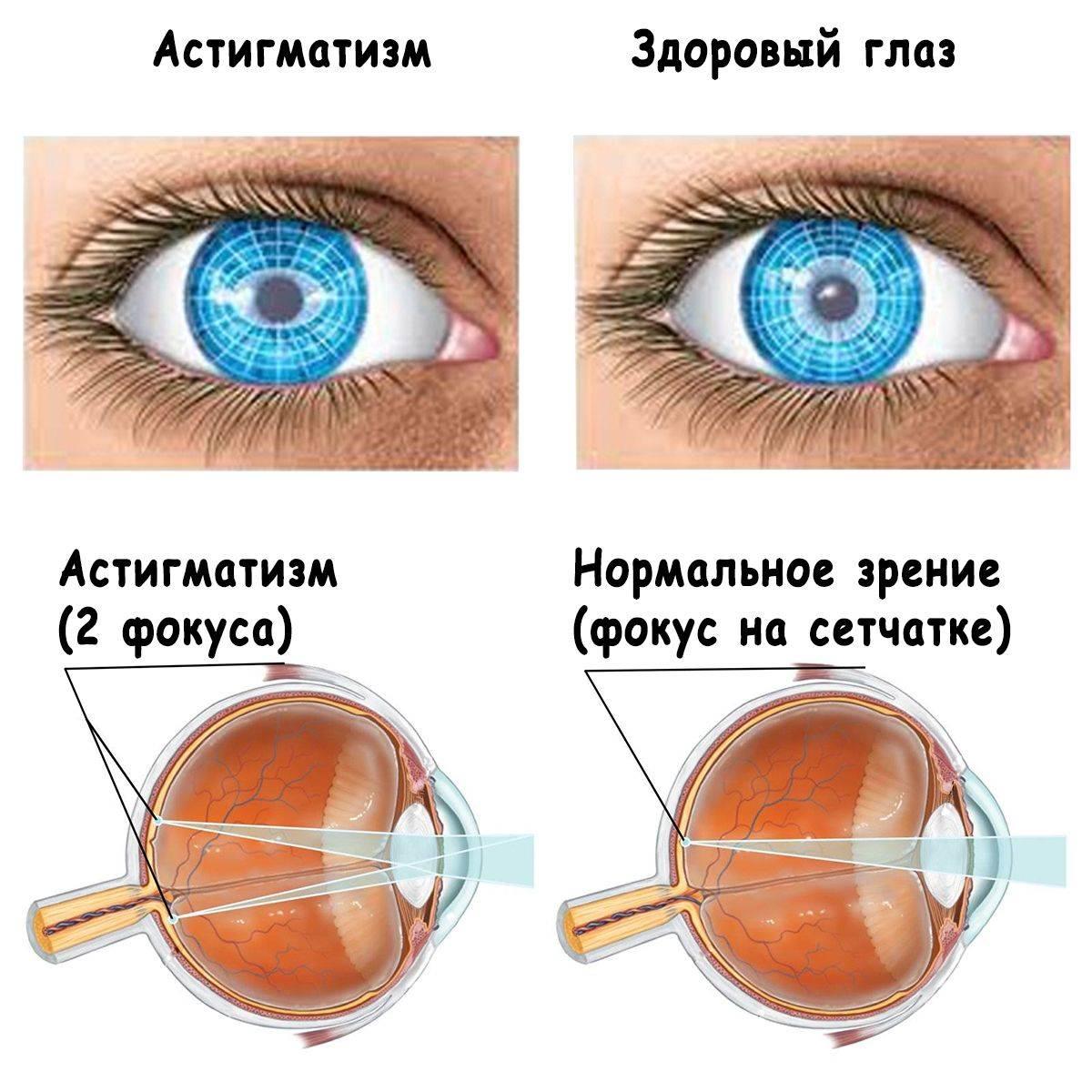 Гиперметропический астигматизм: причины, симптомы, лечение, виды (сложный, простой, прямой, обоих глаз и одного), диагностика, что это такое, профилактика