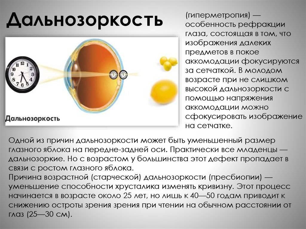 Миопия высокой степени: методы лечения, ограничения при миопии