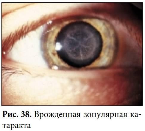 Врожденная катаракта у детей и взрослых: причины, симптомы, что делать при наличии заболевания