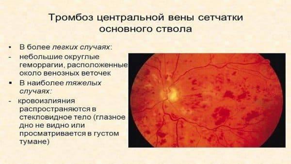 Тромбоз центральной вены сетчатки глаза: причины, симптомы по стадиям окклюзии, методы лечения