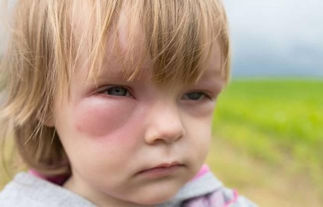 Виды аллергии: 120 фото проявлений, обзор основных симптомов и советы по выбору лекарств