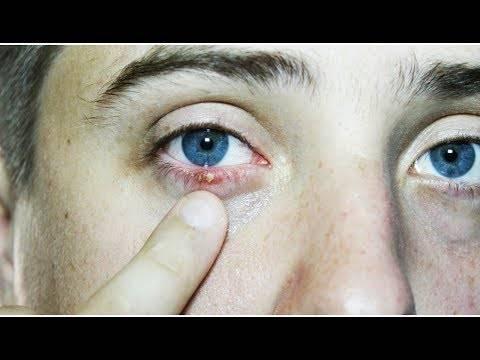 Чирей на глазу: лечение и как избавиться от фурункула