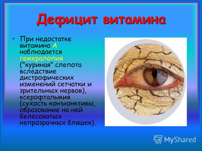 Куриная слепота возникает при недостатке каких витамин: симптомы болезни у человека, почему так назвали, причины, лечение