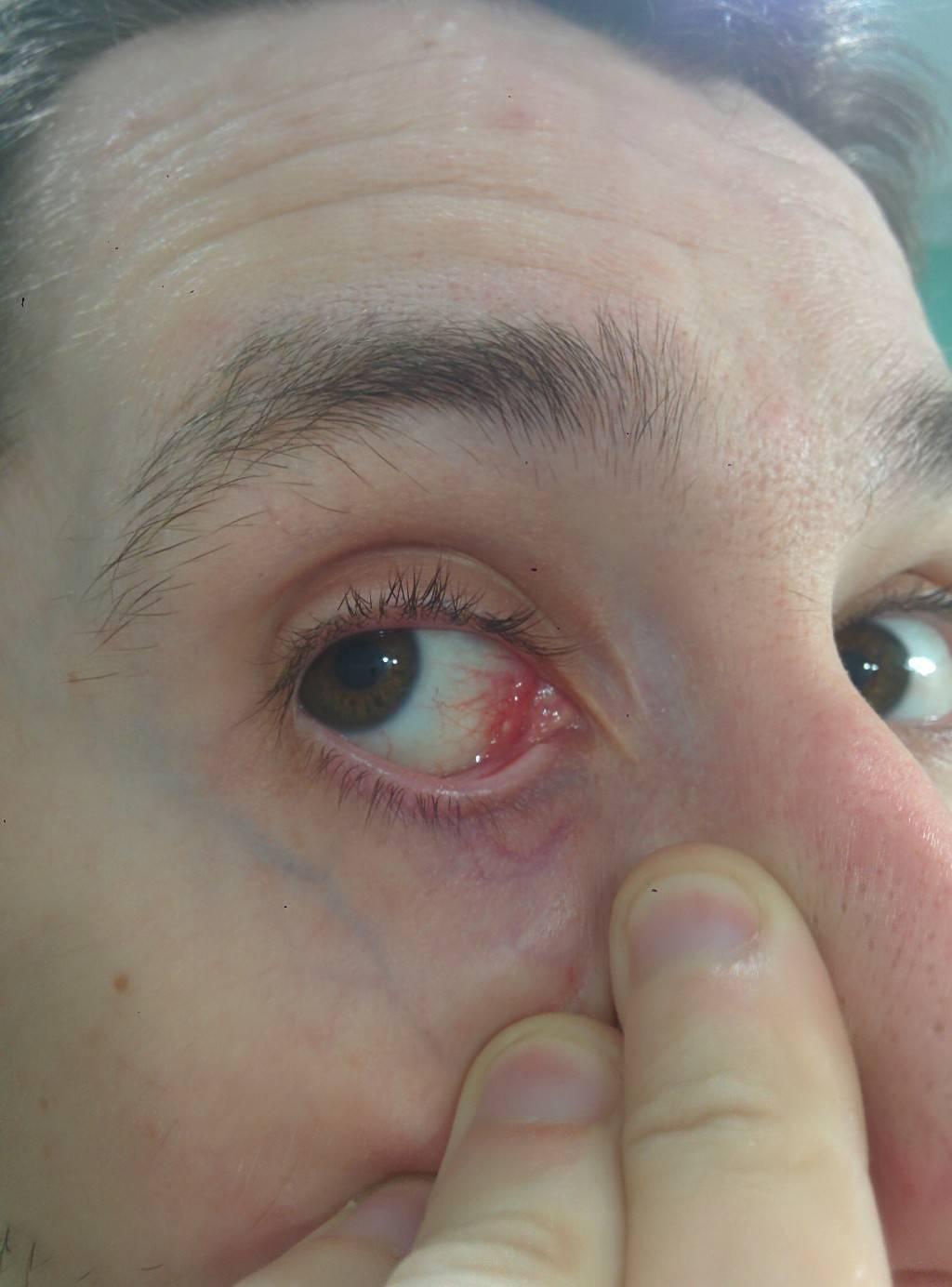 Киста конъюнктивы: причины, диагностика, лечение - здоровое око