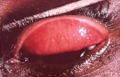 Рак глаза: фото, первые симптомы, лечение