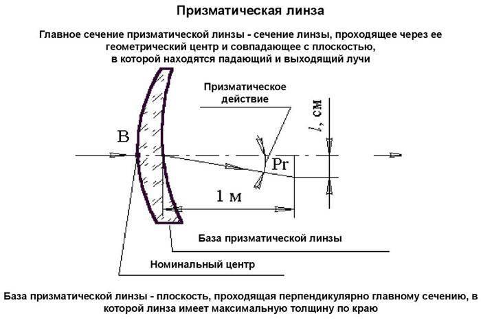 Астигматические контактные линзы, пресчет, близорукости, принцип разметки, перерасчет