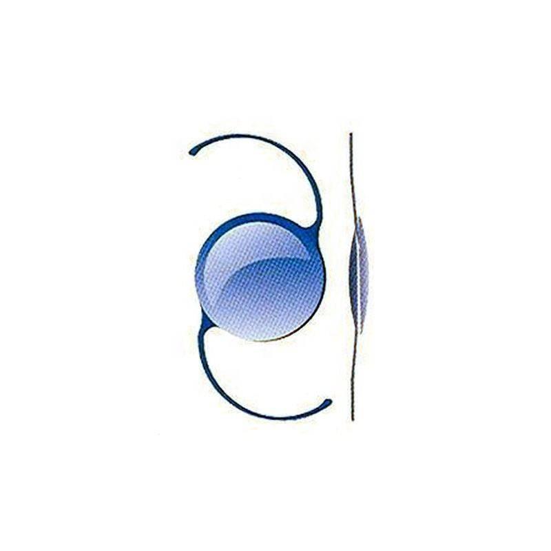 Имплантация факичных линз может привести к катаракте в течение 10 лет