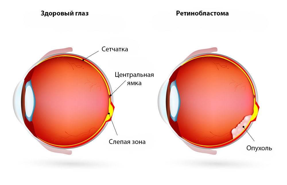 Ретинобластома у детей (рак сетчатки глаза): симптомы, причины, лечение, прогноз на будущее, фото, диагностика, классификация, стадии
