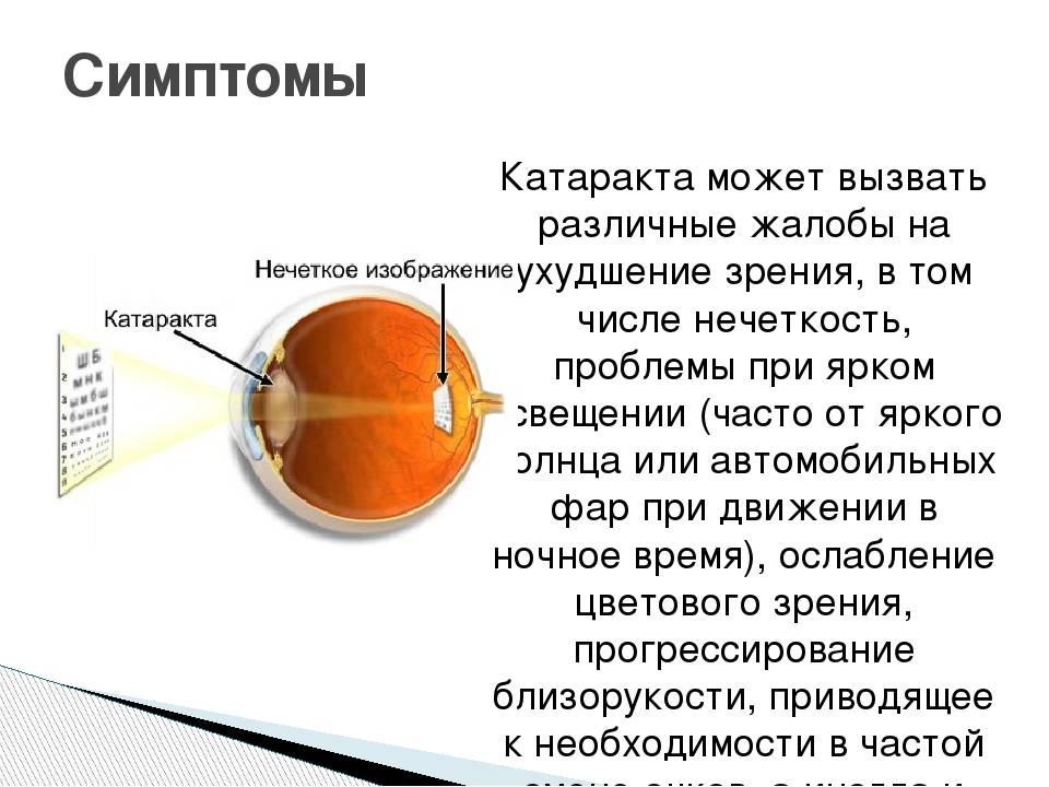 Начальная катаракта глаза: причины, симптомы, эффективное лечение ранней стадии, профилактика, что делать