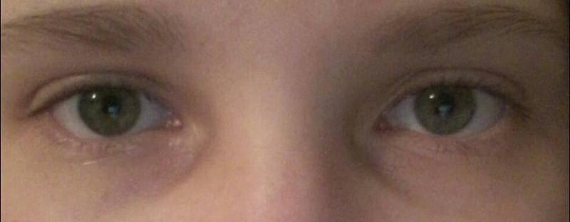 Синяки у переносицы в уголках глаз причины