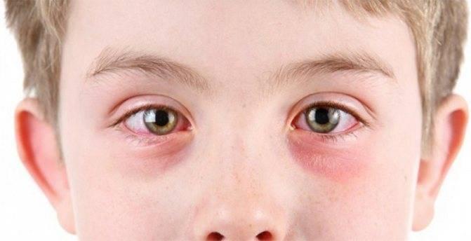 Причины покраснения глаз у грудничков и новорожденных детей