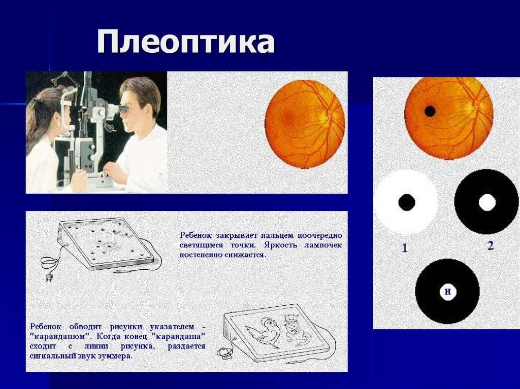 Методические указания студентам по теме практического занятия: бинокулярное зрение патология глазодвигательного аппарата