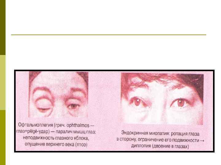Офтальмоплегия: что это такое