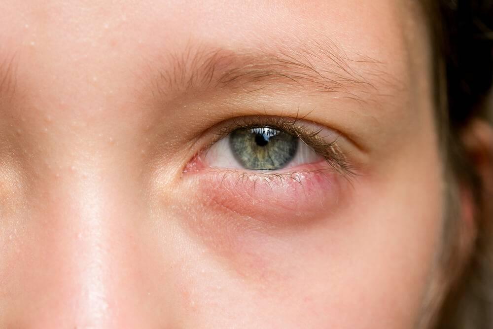 Продуло глаз болит внутри