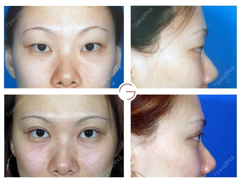 Кантопластика (пластическая хирургия увеличение глаз): подробное описание операции, противопоказания, ход выполнения, уход после, осложнения
