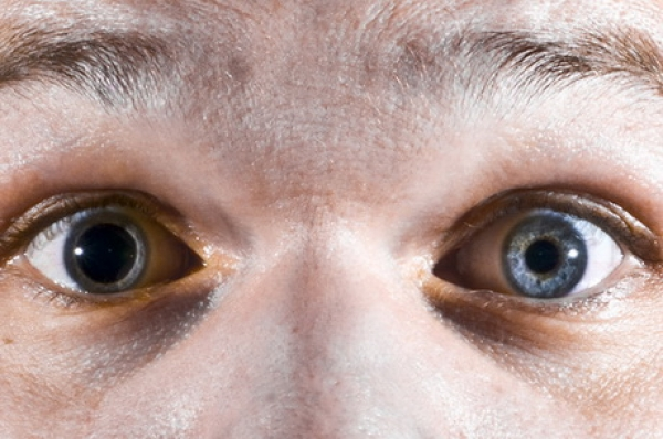 Мидриаз - симптомы, причины, лечение