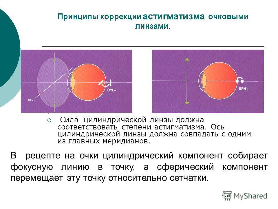 Что такое астигматические (торические) контактные линзы и почему их должен подбирать офтальмолог