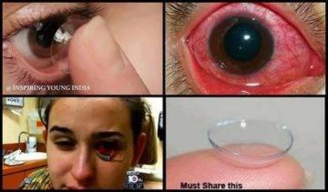 Ношение линз: последствия, увлажняющие капли для глаз, дительного, непрерывного