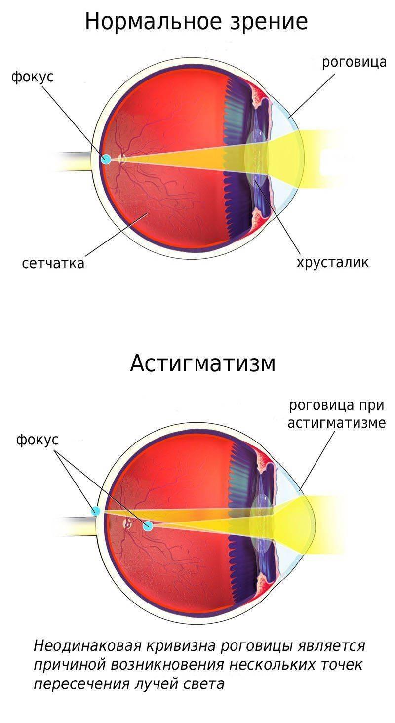 Отличия нормального зрения и зрения при астигматизме