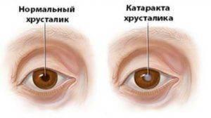 Здоровые глаза и при катаракте