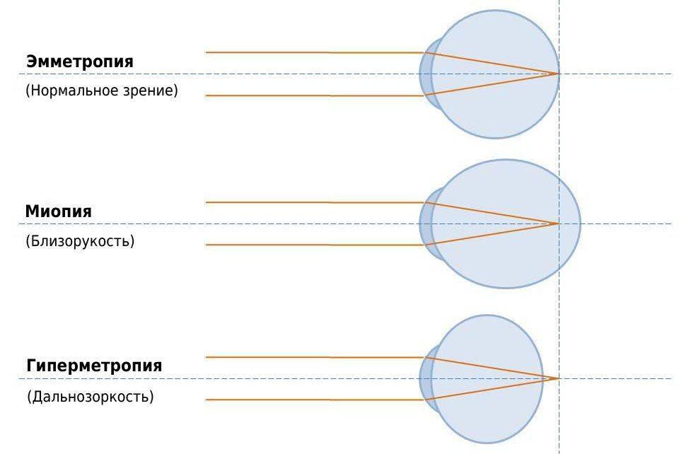 нормальное зрение, близорукость и дальнозоркость