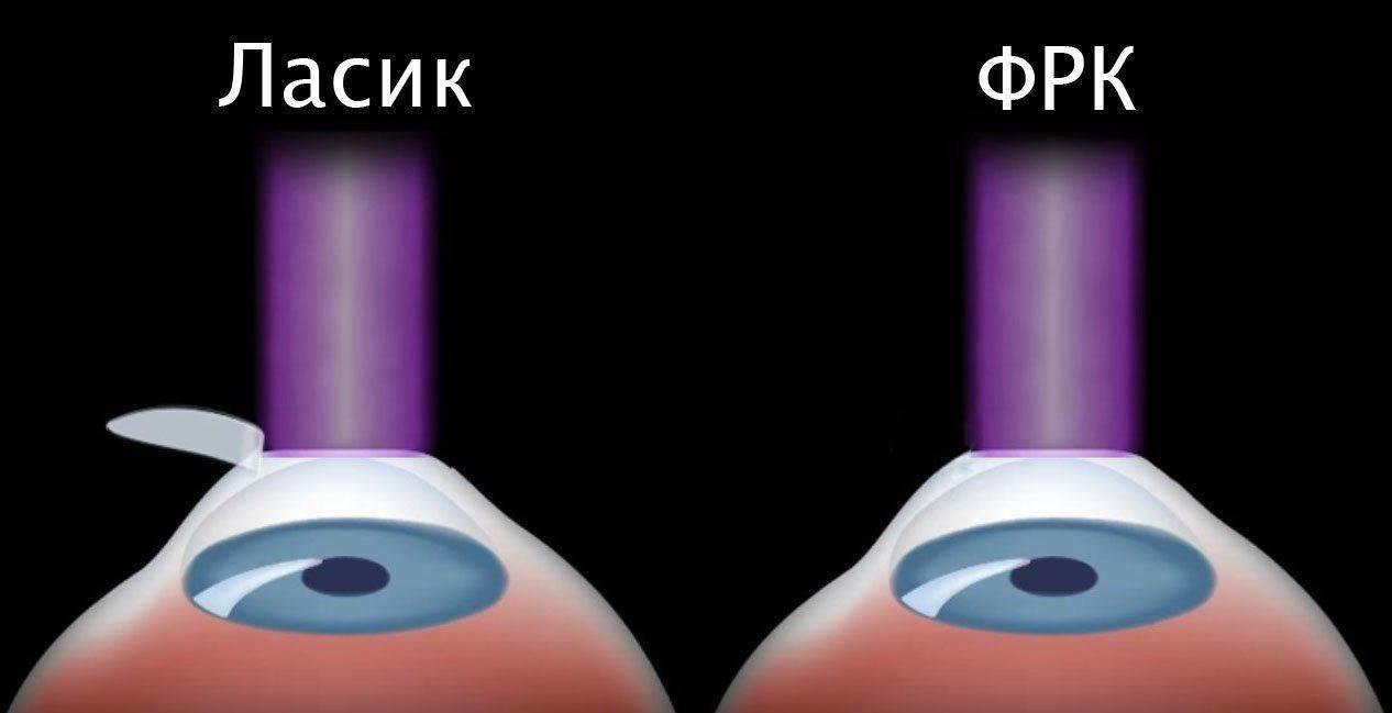 Ласик и ФРК: различия