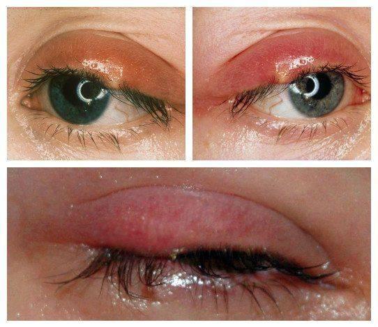 Как выглядит глазной ячмень