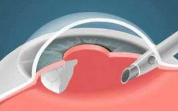 Хирургическое лечение вторичной катаракты