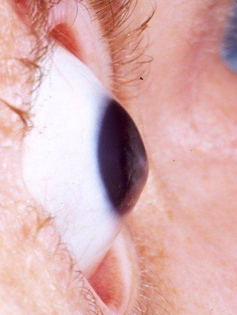 Глаз при кератоконусе