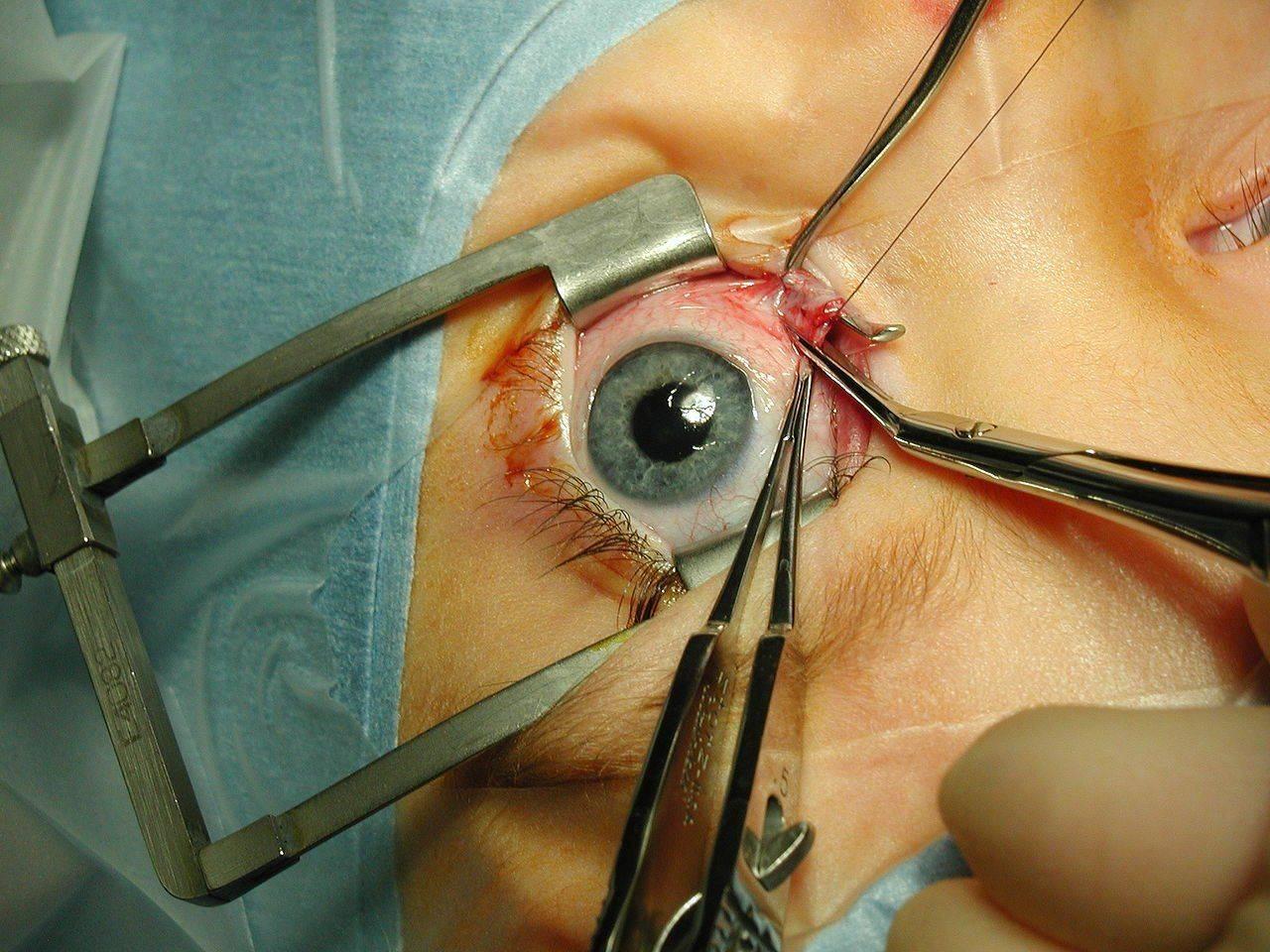 Хирургическая операция на глазу