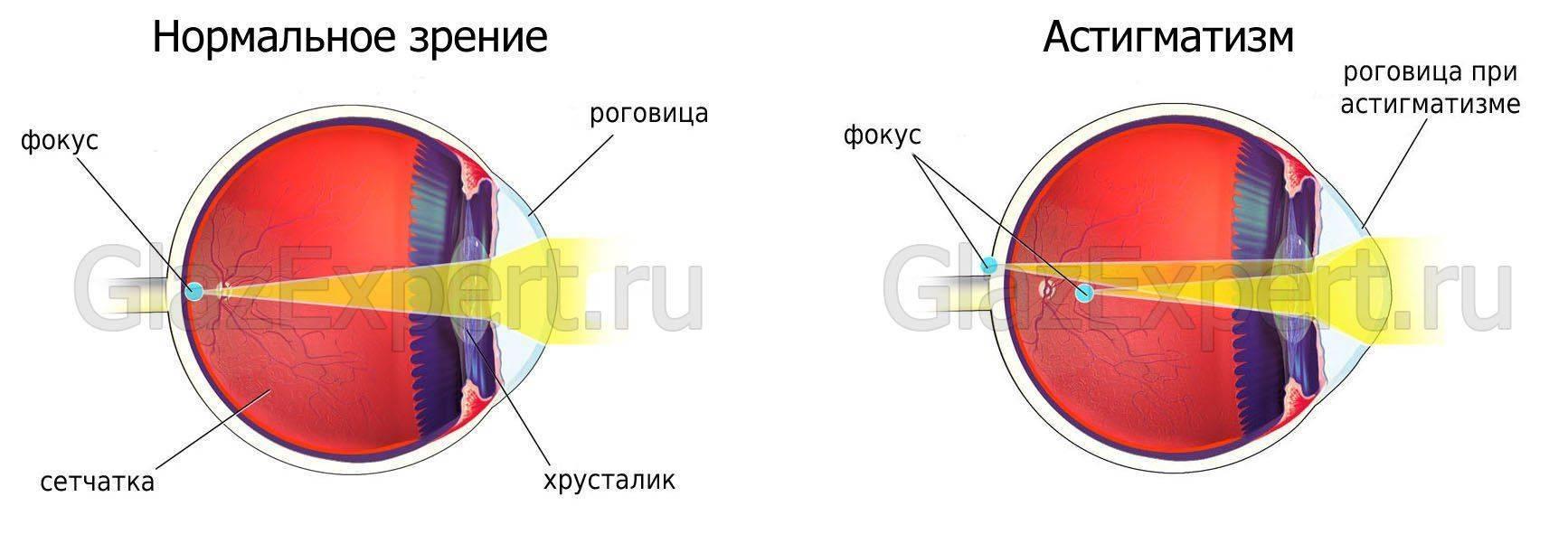 Отличия: глаз при астигматизме и при эмметропии (нормальном зрении)