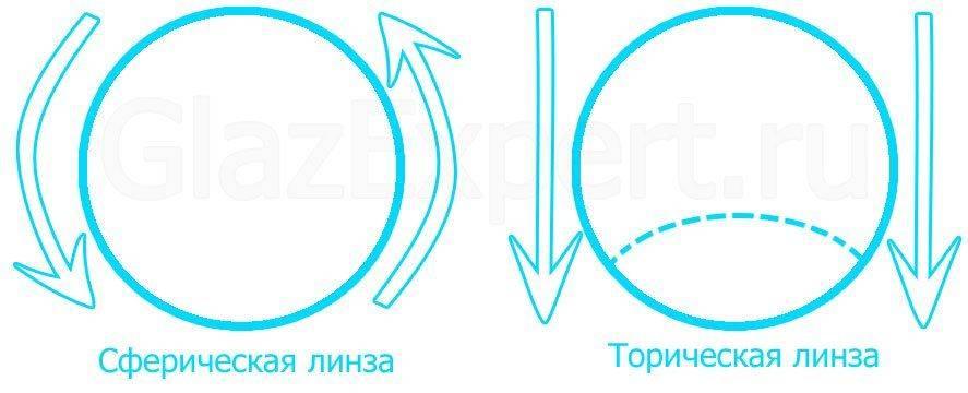 Разница между сферическими и торическими контактными линзами