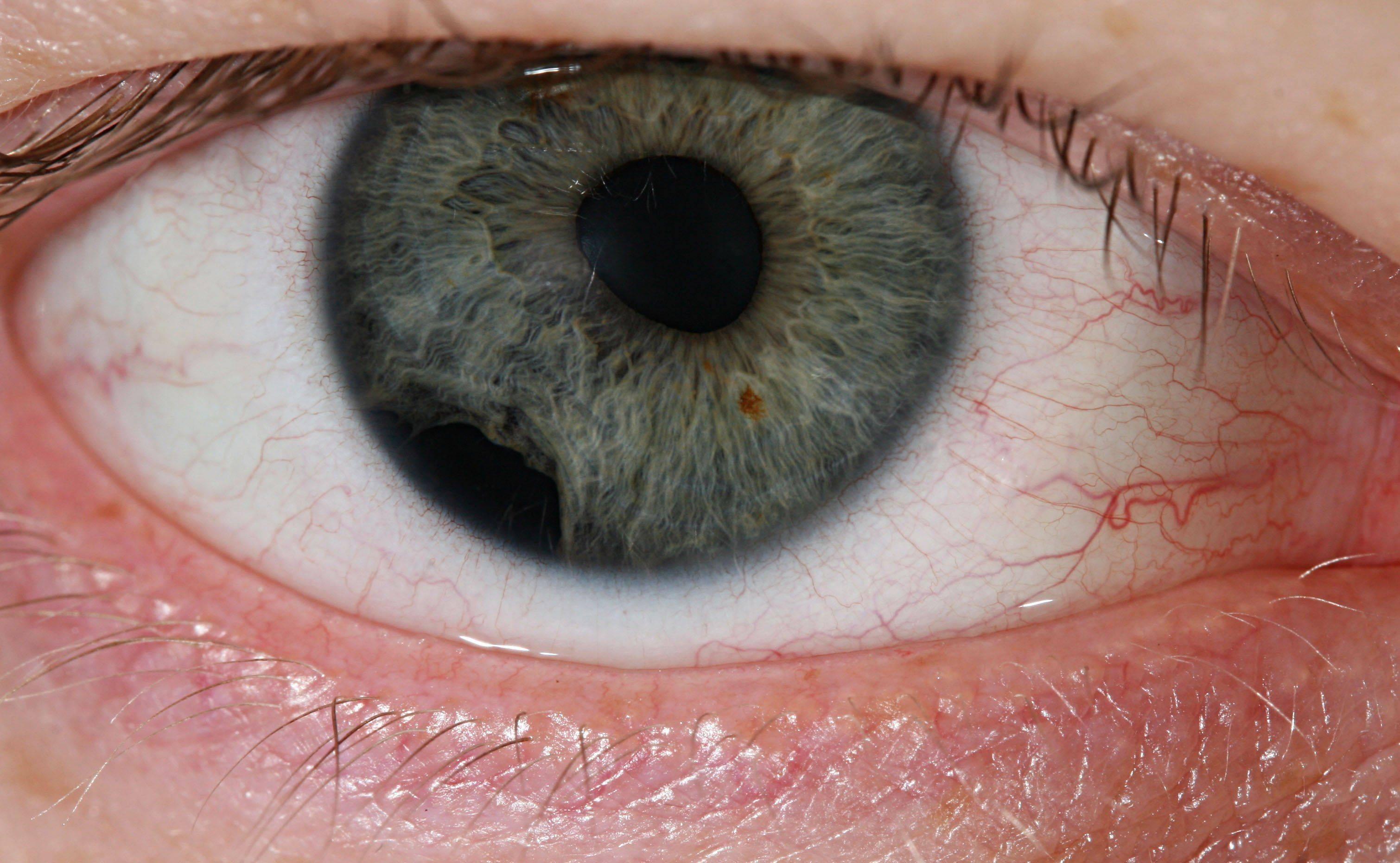 Какая может быть травма глаза