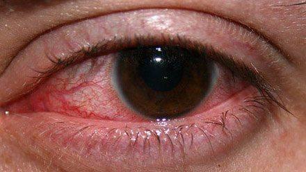 Воспалённый глаз: внешний вид
