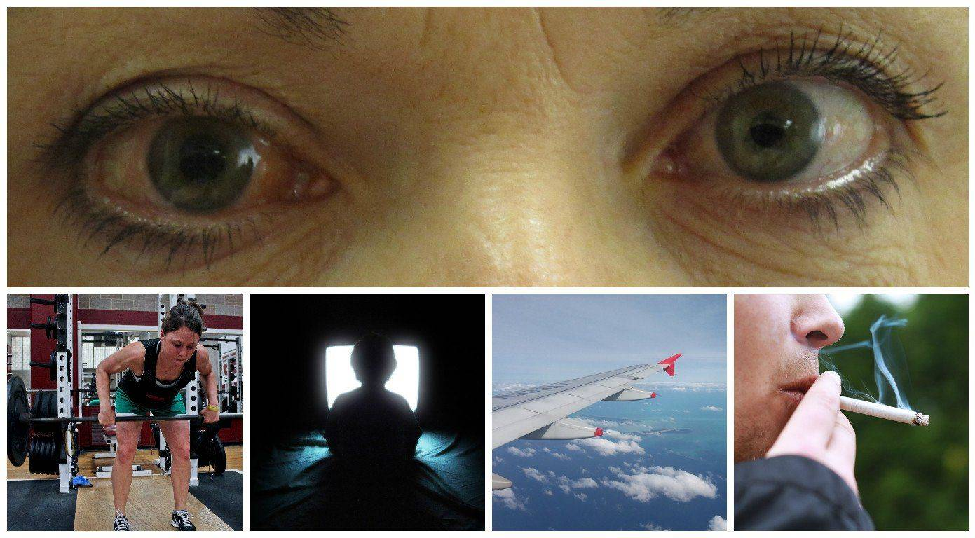 Что противопоказано если у вас глаукома