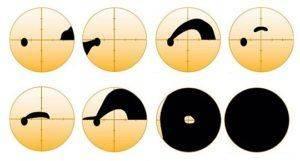 Поле зрения при глаукоме