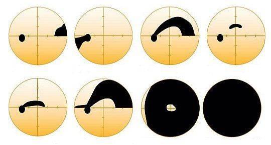 Изменения в поле зрения при глаукоме