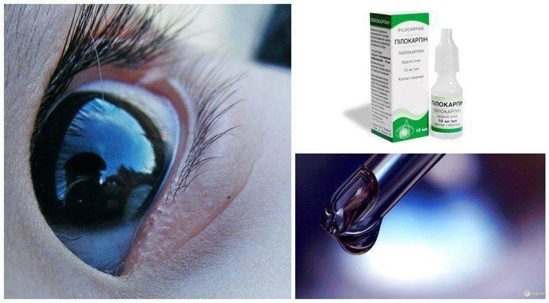 Какие глазные капли нужны при глаукоме