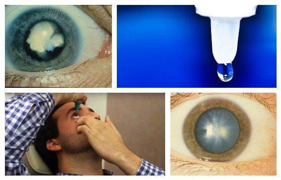 Какие капли нужны при катаракте