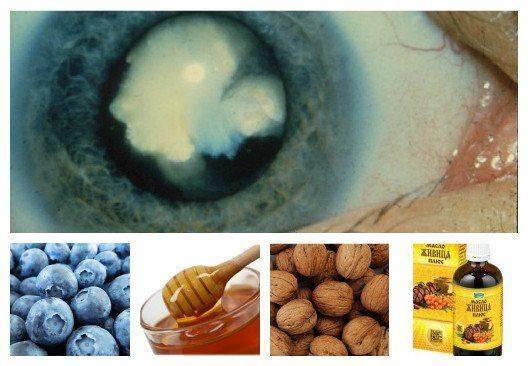 Растительные компоненты для лечения катаракты