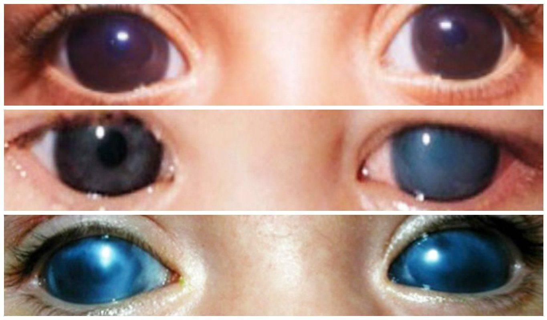 Врожденная глаукома у детей (разные стадии)