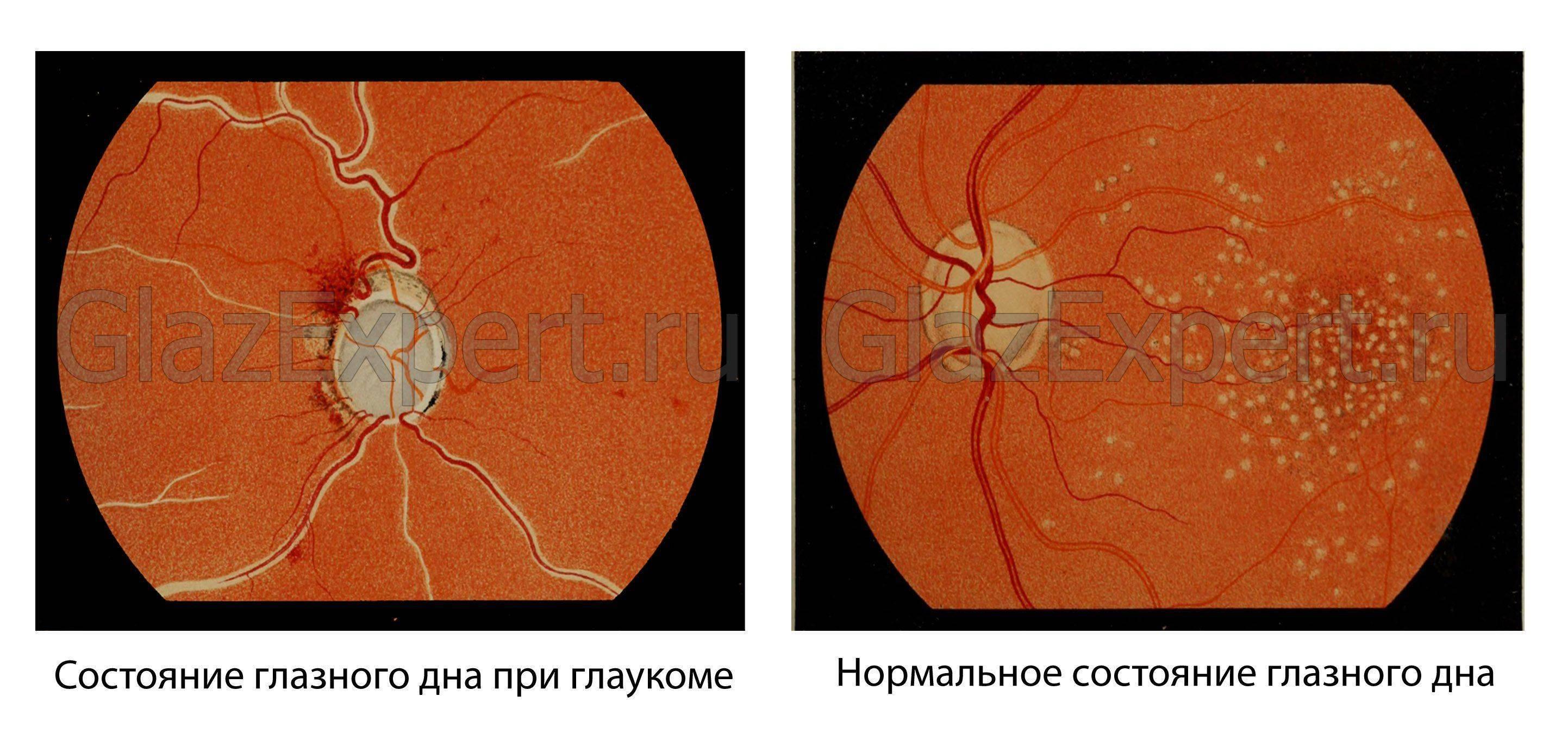 Глазное дно у здорового человека и больного глаукомой