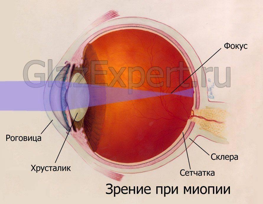 Как выглядит глазное яблоко при миопии