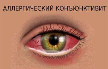 Аллергический вид