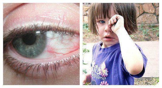 Болит в уголке глаза