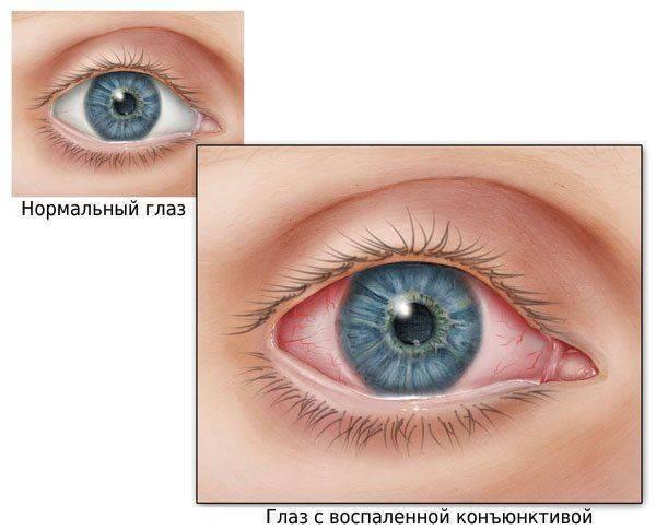 Здоровый глаз и с конъюкнтивитом