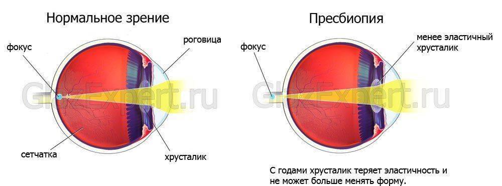 Схема глаза при пресбипоии