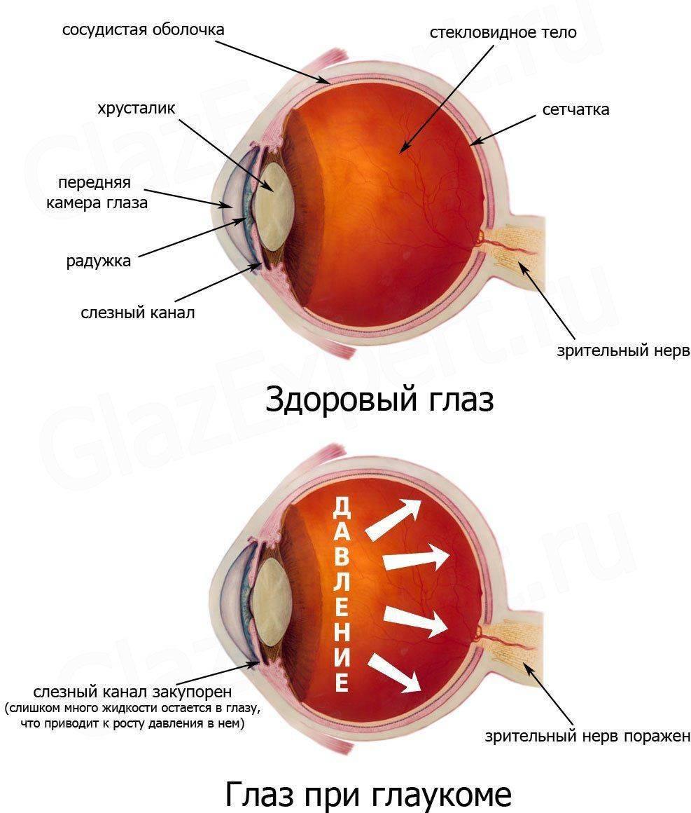 Глаукома: как выглядит